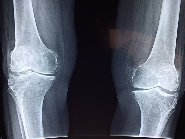 Do I need a knee replacement?